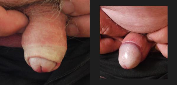 LICHEN SCLERO-ATROPHIQUE avant / après circoncision totale