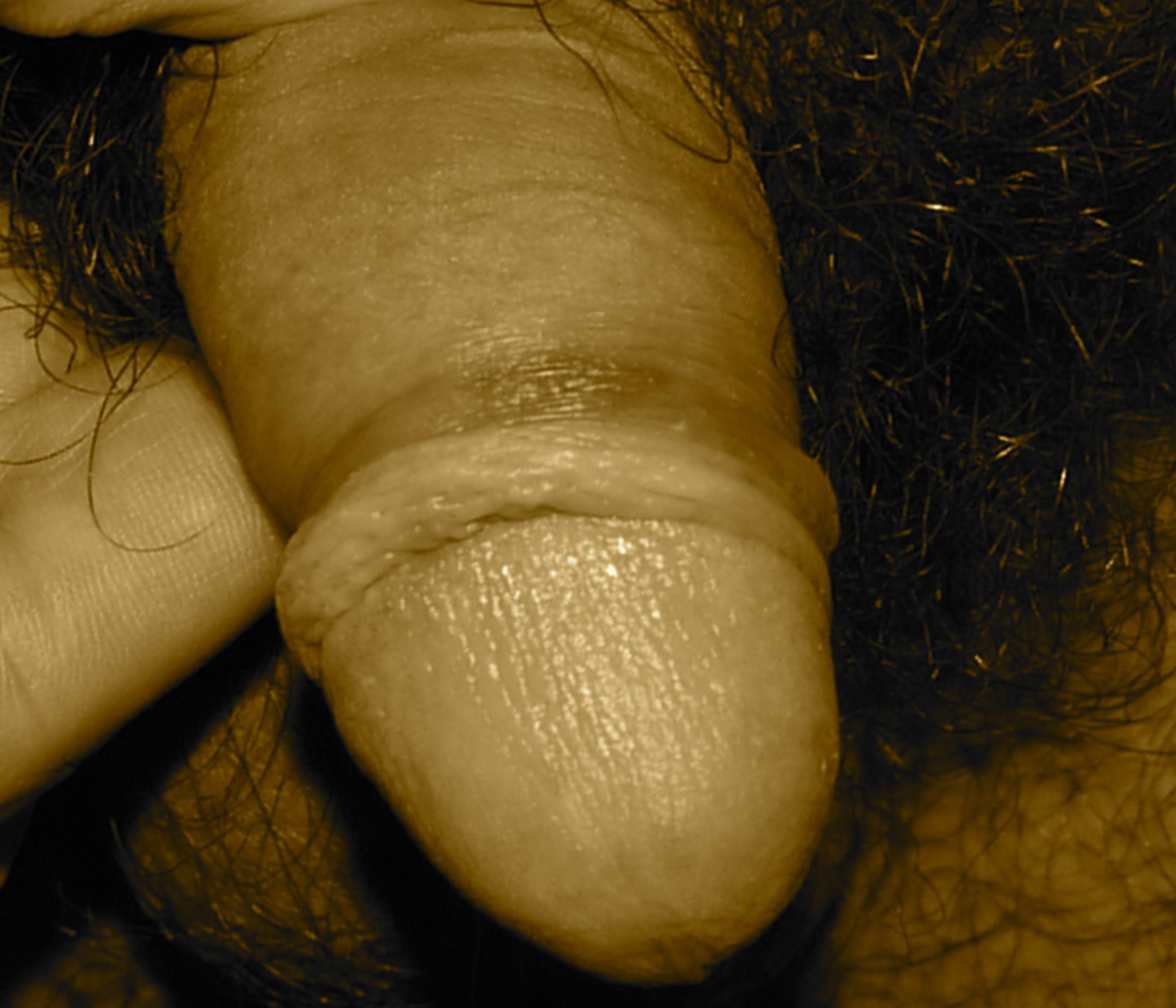 PHIMOSIS avant circoncision