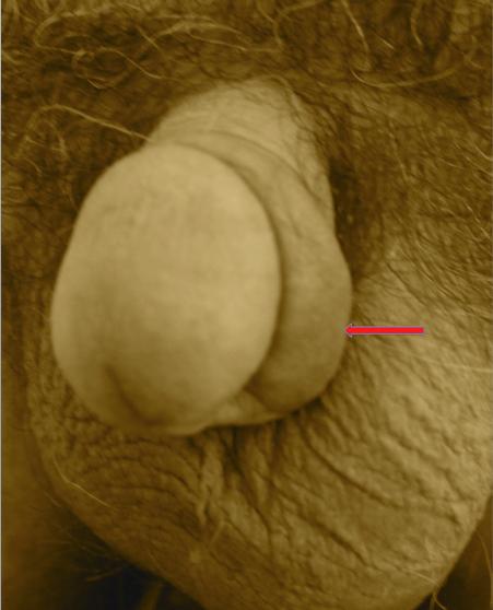 PARAPHIMOSIS avant circoncision (oedème du prépuce)