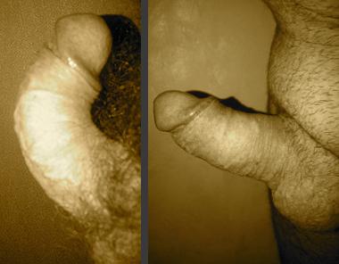 Photo avant / après 1