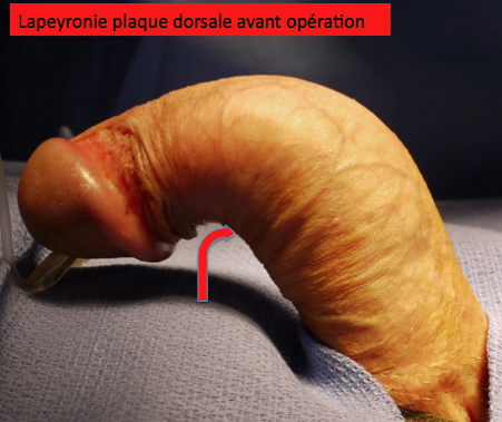 PATIENT VV : LAPEYRONIE avant chirurgie d' excision - greffe