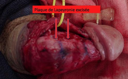 PATIENT VV : LAPEYRONIE plaque excisée
