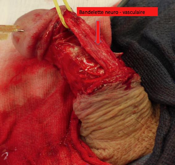 PATIENT VV : LAPEYRONIE bandelette neuro vasculaire