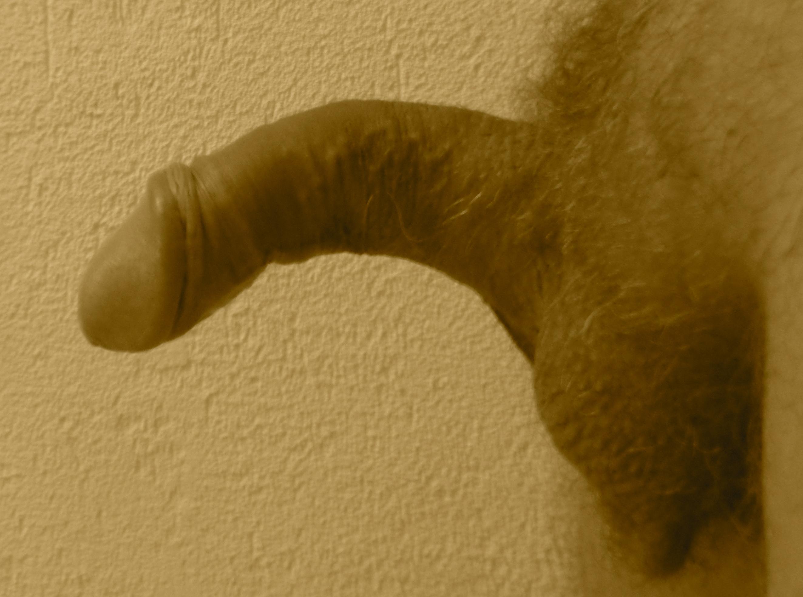 Lapeyronie : pénis courbé vers le bas