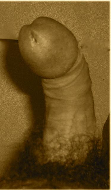 Lapeyronie : pénis courbé