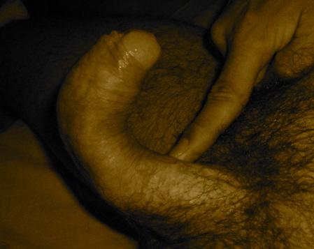 Lapeyronie : pénis courbé angle 90°