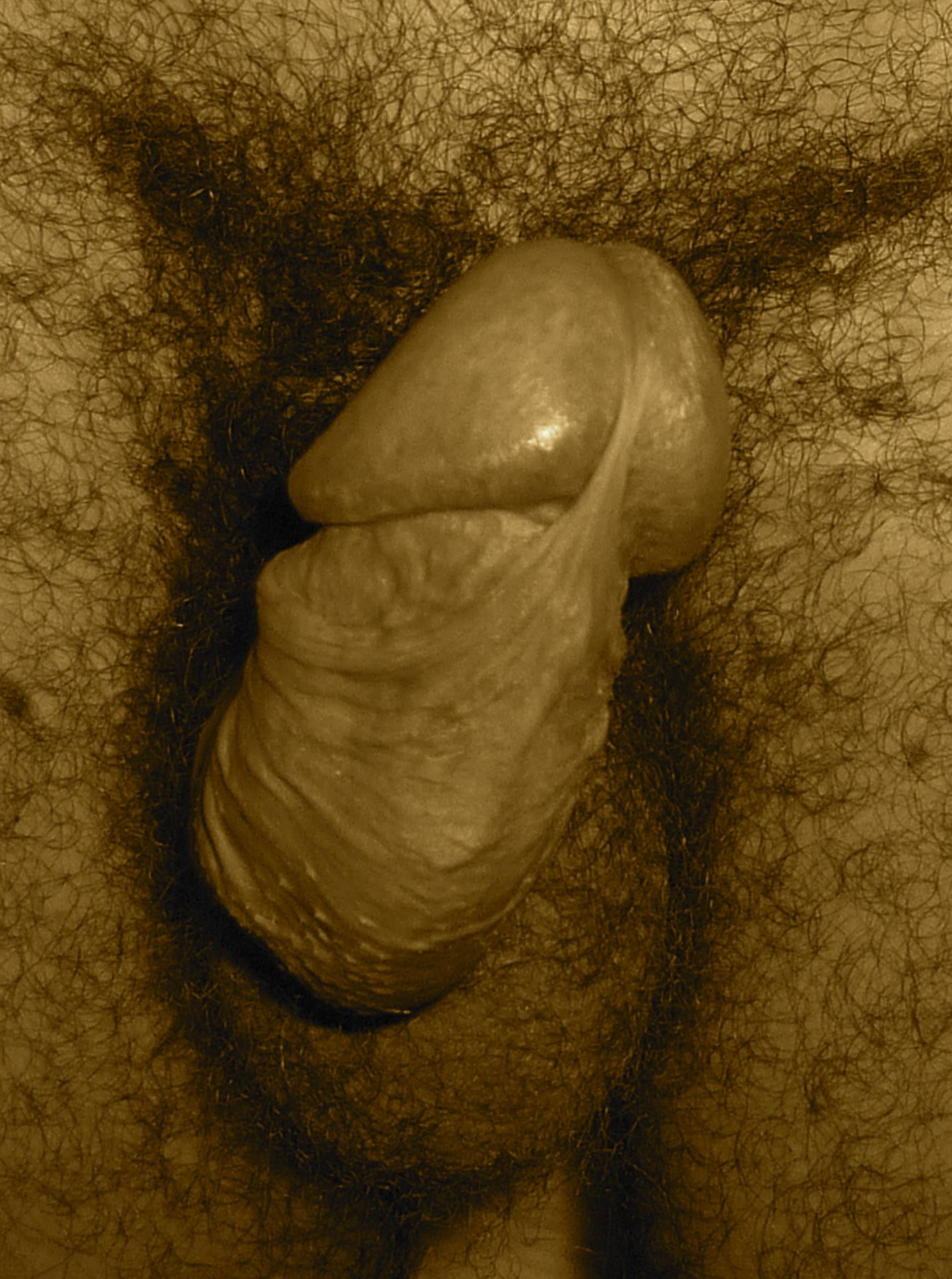 Lapeyronie : pénis courbé dorsale et latérale