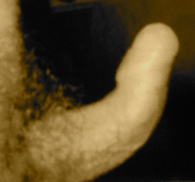 Lapeyronie : penis courbé angle 40°