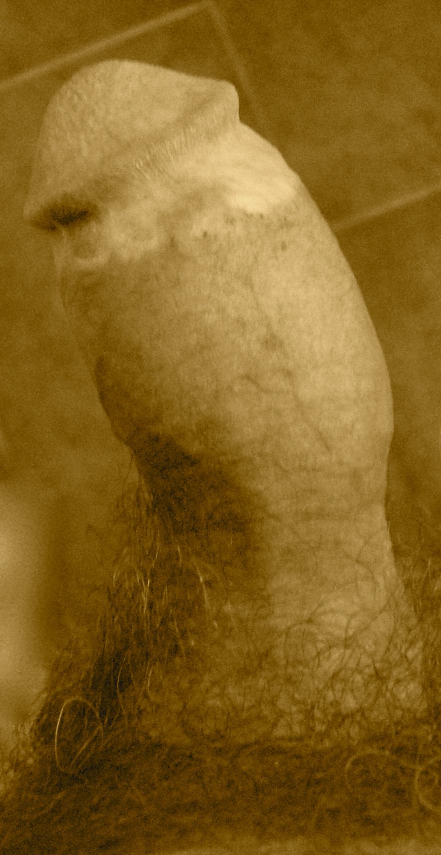 Lapeyronie : pénis courbé en sablier