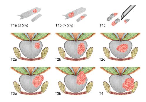 classification tnm - cancer de la prostate